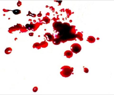 AR trigger for Blood Splatter Analysis